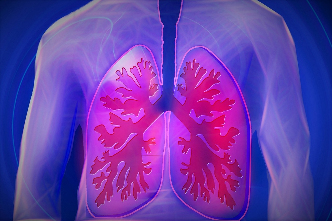 MERS- Middle East Respiratory Syndrome